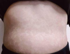 尋常性乾癬経過写真13