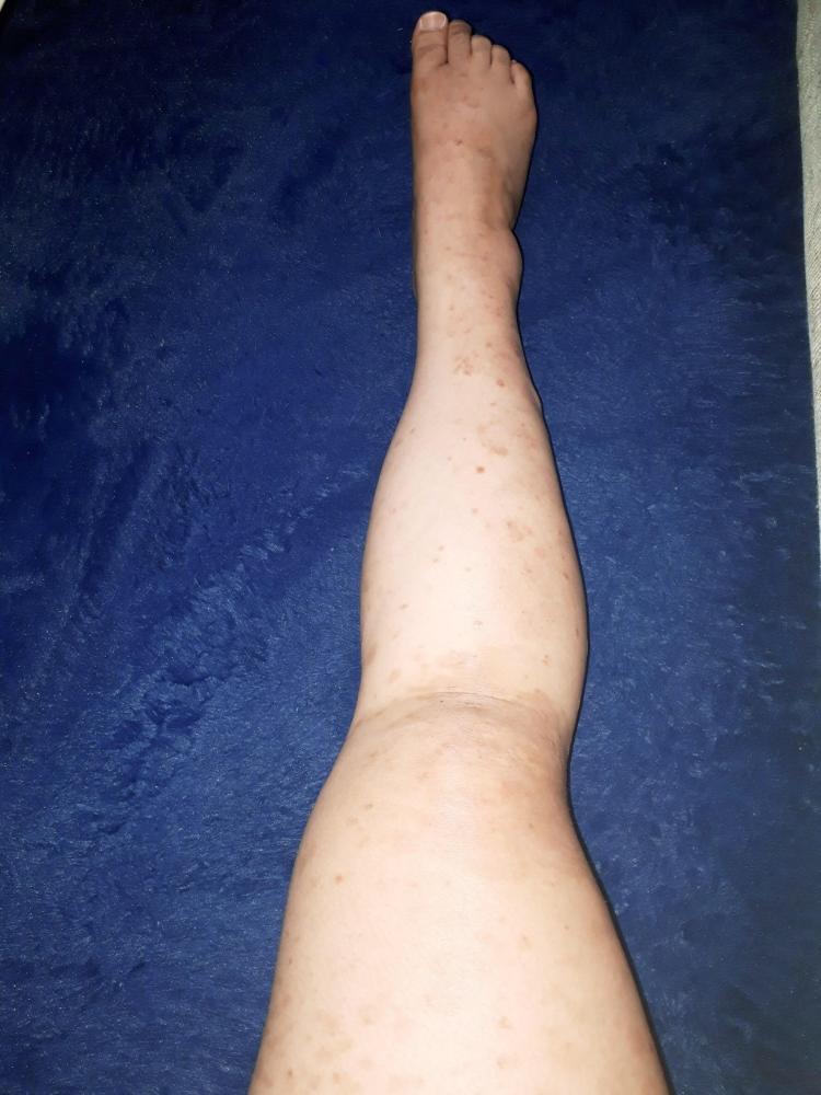 尋常性乾癬経過報告13