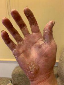 掌蹠膿疱症(対策前)
