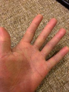 掌蹠膿疱症(対策後)